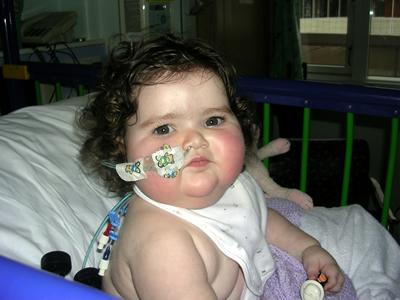 Jasmine post transplant