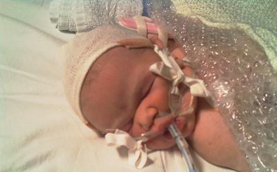 Jasmine on first night at Great Ormond St Hospital